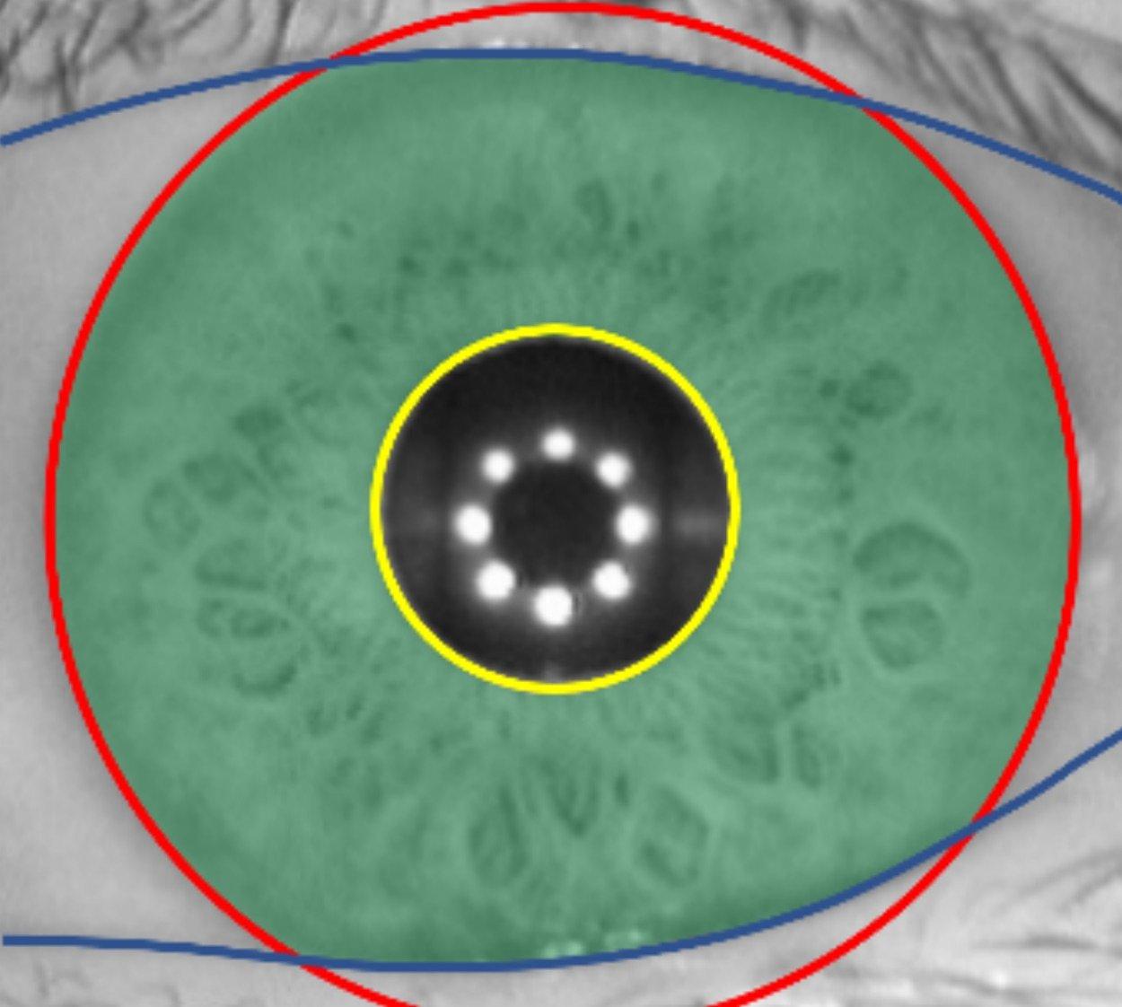 Iris zones